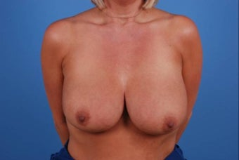 47 year old female treated for breast cancer post mastectomy before 1355462