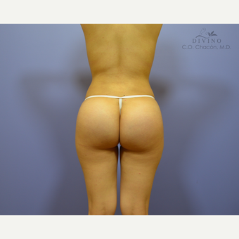18-24 year old woman treated with Butt Augmentation after 3386558