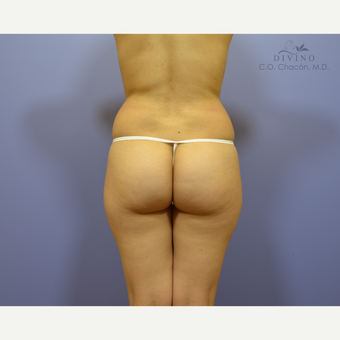 18-24 year old woman treated with Butt Augmentation before 3386558