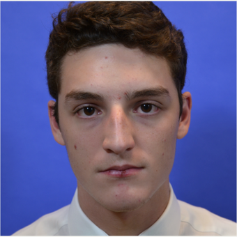 18-24 year old man treated with Rhinoplasty before 3579788