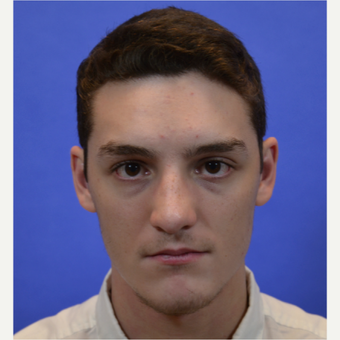 18-24 year old man treated with Rhinoplasty after 3579788