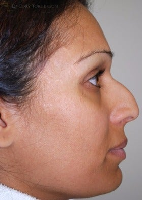 25-34 year old woman treated with Rhinoplasty before 3259401