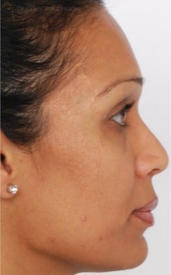 25-34 year old woman treated with Rhinoplasty after 3259401