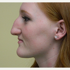 18-24 year old woman treated with Rhinoplasty before 3370717