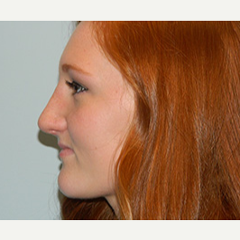 18-24 year old woman treated with Rhinoplasty after 3370717