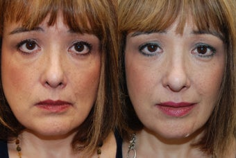 Silikon-1000 for undereyes, nasolabial folds, lips and corners of mouth.  before 938896