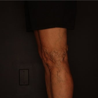 55-64 year old man treated with Sclerotherapy before 2081435