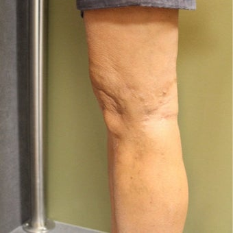 55-64 year old man treated with Sclerotherapy after 2081435