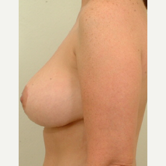 25-34 year old woman treated with Breast Lift after 3523960