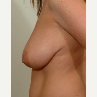 25-34 year old woman treated with Breast Lift before 3523960