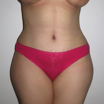 35-44 year old woman treated with Tummy Tuck after 2062272