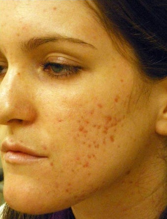 Acne Scars Laser Surgery before 667022