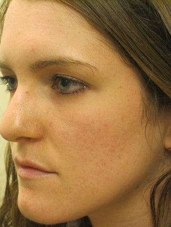 Acne Scars Laser Surgery after 667022