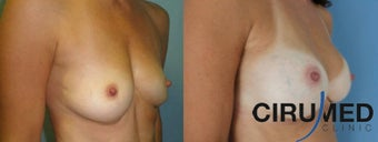 Composite Supercharged Breast Augmentation (silicone/fat)  after 1285088