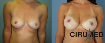 Composite Supercharged Breast Augmentation (silicone/fat)  before 1285088