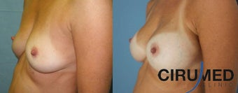 Composite Supercharged Breast Augmentation (silicone/fat)  1285088