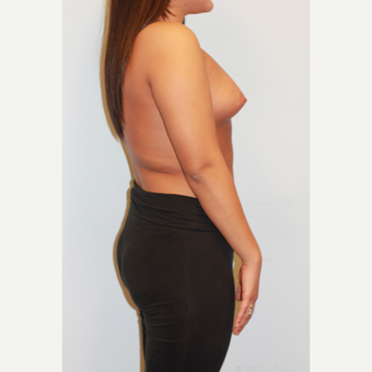 18-24 year old woman treated with Breast Augmentation before 3026967