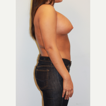 18-24 year old woman treated with Breast Augmentation after 3026967