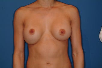 Breast Implant Revision before 347228