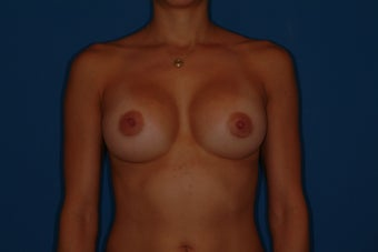 Breast Implant Revision after 347228