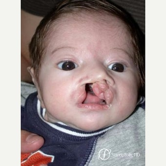 17 or under year old man treated with Cleft Lip And Palate Repair before 2656169