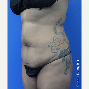 35-44 year old woman treated with Tummy Tuck before 3680021