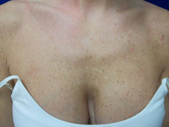 Photofacial IPL: Chest before 1262660
