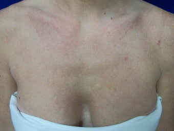 Photofacial IPL: Chest after 1262660