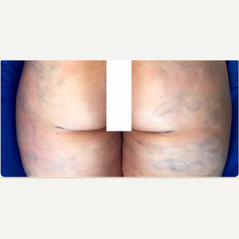 35-44 year old woman treated with Fat Transfer after 3578286