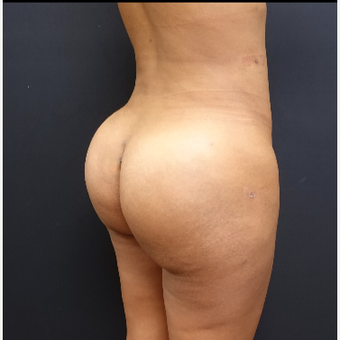 25-34 year old woman treated with Brazilian Butt Lift after 3731873