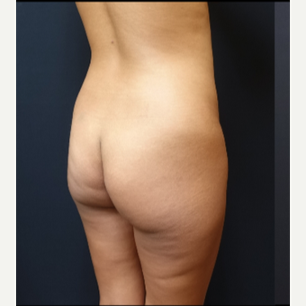 25-34 year old woman treated with Brazilian Butt Lift before 3731873