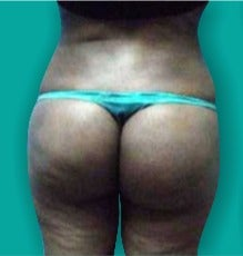 25-34 year old woman treated with Brazilian Butt Lift after 3247598