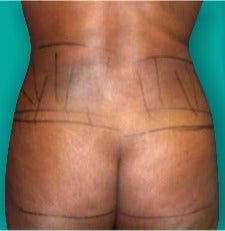 25-34 year old woman treated with Brazilian Butt Lift before 3247598