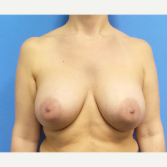 35-44 year old woman treated with Breast Augmentation after 3843064