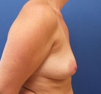 35-44 year old woman treated with Breast Augmentation 3843064