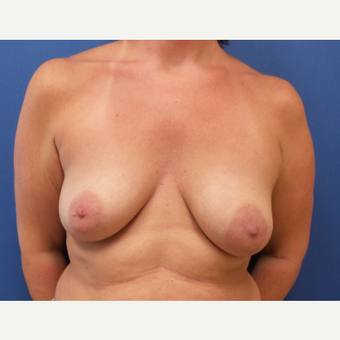 35-44 year old woman treated with Breast Augmentation before 3843064