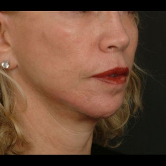 65-74 year old woman treated for Liquid Facelift after 1479646