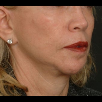 65-74 year old woman treated for Liquid Facelift before 1479646