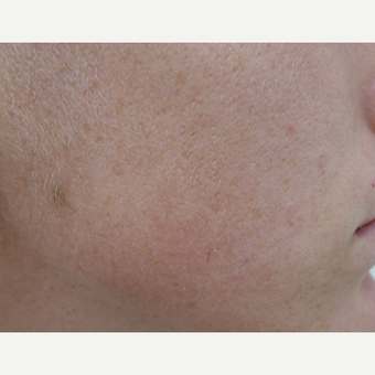 Acne treatment after 3679299