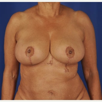 75 year-old woman underwent breast reduction after 2392227