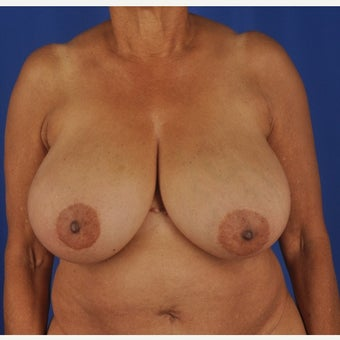 75 year-old woman underwent breast reduction before 2392227