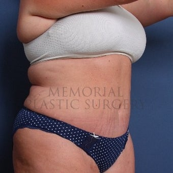 Woman treated with Tummy Tuck after 2652476
