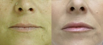 48 year old female treated with Juvederm injections to the lips before 869612