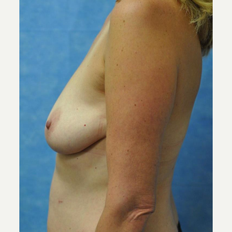 45-54 year old woman treated with Breast Lift with Implants before 3440939