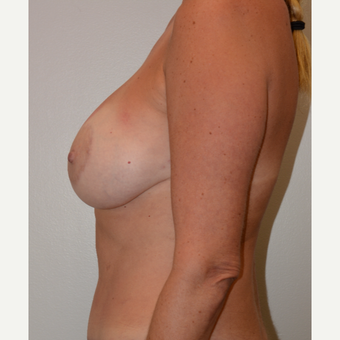 45-54 year old woman treated with Breast Lift with Implants after 3440939