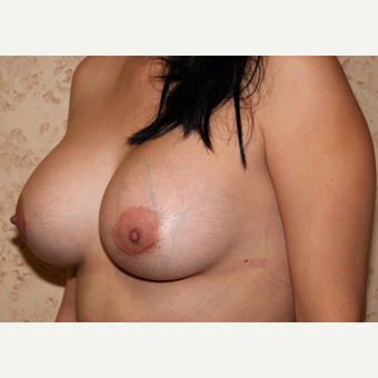 Silicone Implants - Breast Augmentation after 3325100