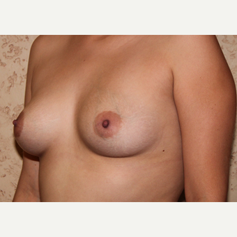 Silicone Implants - Breast Augmentation before 3325100
