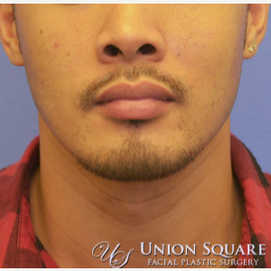 35-44 year old man treated with Alarplasty (nostril narrowing) before 3489539