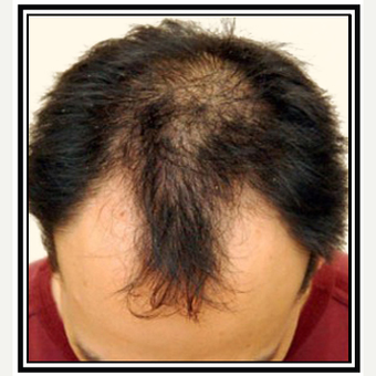 35-44 year old man treated with Hair Transplant before 3696460