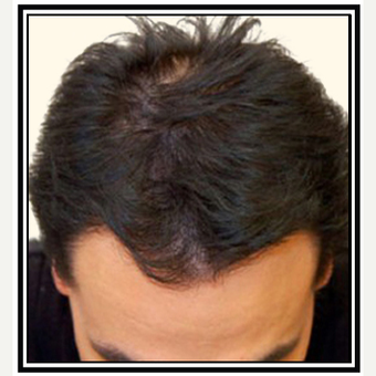 35-44 year old man treated with Hair Transplant after 3696460